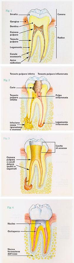 Endodonzia -Olivia Poli studio odontoiatrico Torino - Studio dentistico