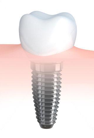 Implantologia studio odontoiatrico Olivia Poli Torino