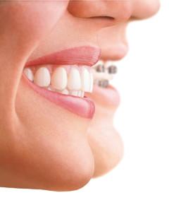 Ortodonzia Invisibile invisalign - Olivia Poli studio dentistico odontoiatrico
