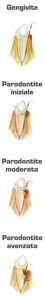 parodontologia-2